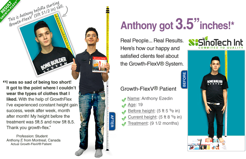 anthony